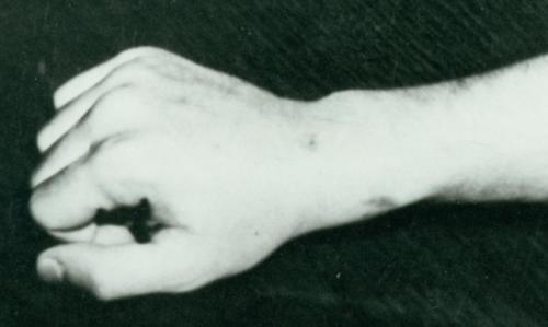 ac.wrist2-1